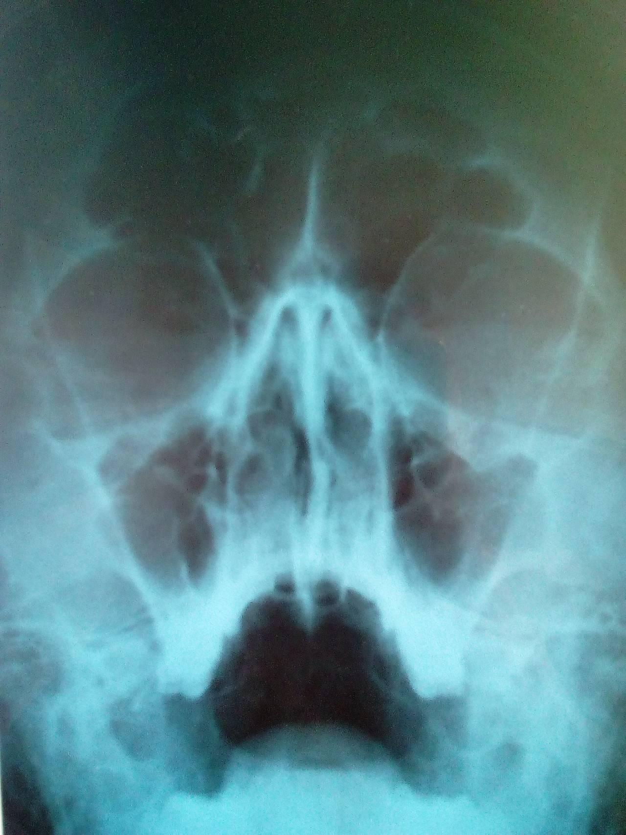 Искривление носовой перегородки: лечение без операции