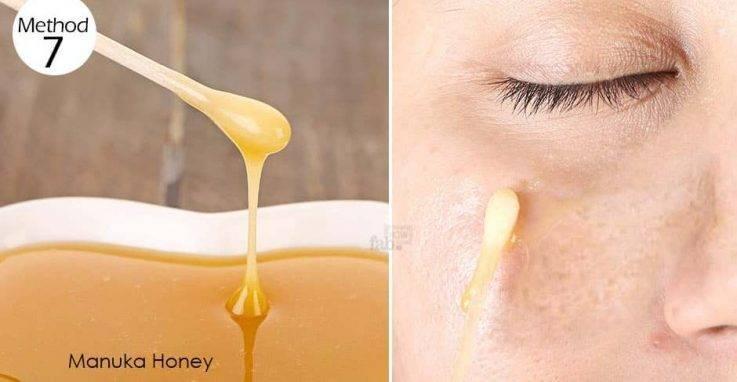 лечение гайморита в домашних условиях медом