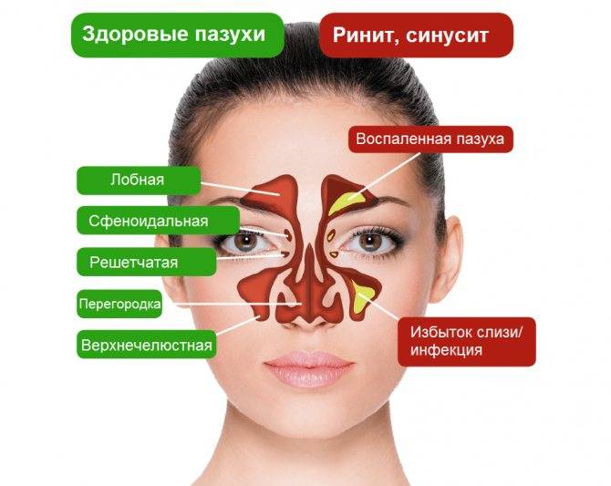 Ингаляционная терапия при гайморите с помощью небулайзера
