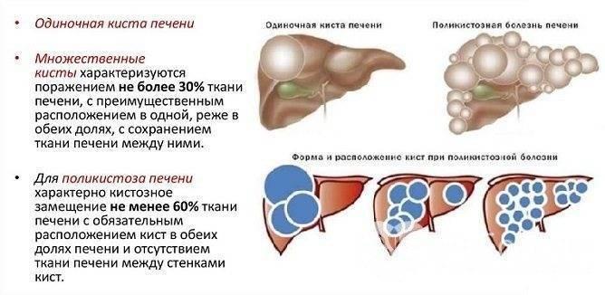 лечение кисты печени народными средствами самые эффективные