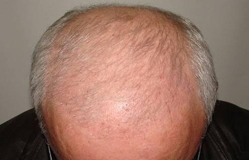 Почему развивается демодекоз волосистой части головы и как его лечить?