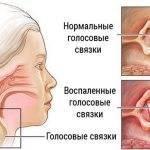 лечение при потере голоса от простуды