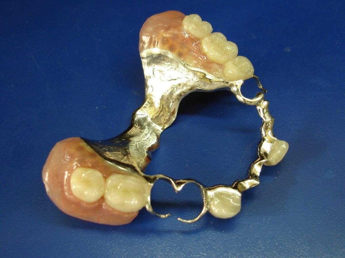 Односторонний бюгельный протез на нижнюю челюсть