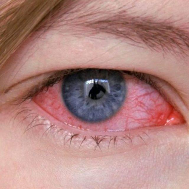 красные глаза по утрам после сна