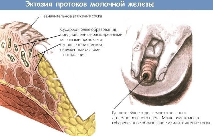 Внутрипротоковая папиллома молочной железы: симптомы, диагностика и лечение.