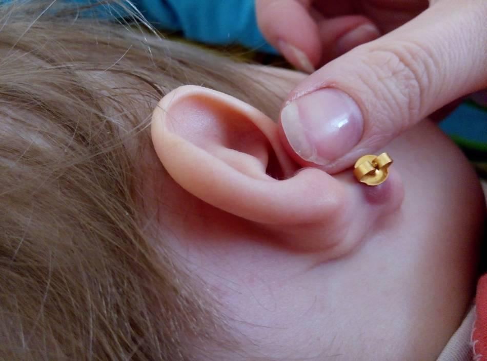 Что делать при появлении атеромы в области уха?