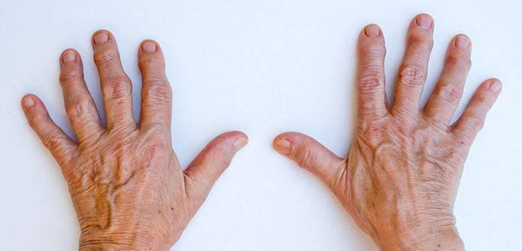 Псориатический артрит — симптомы, лечение, профилактика