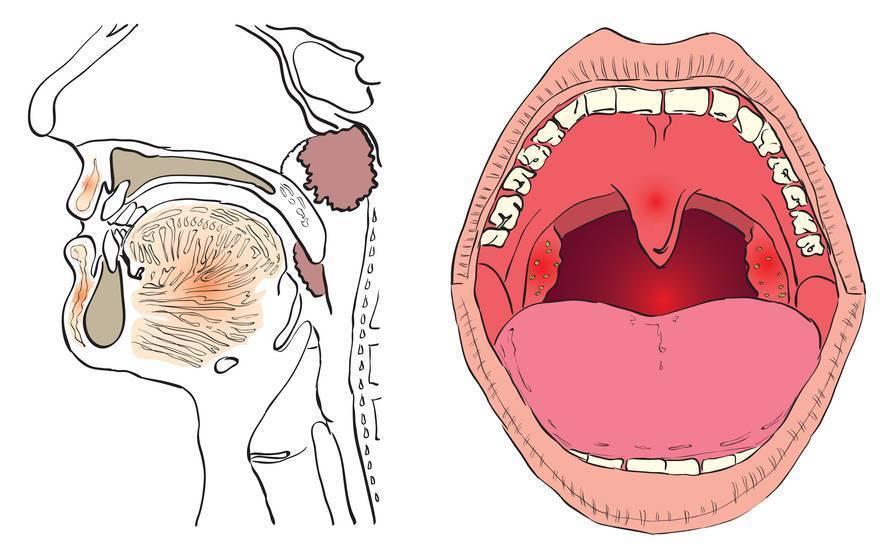 Как вылечить гипертрофию миндалин у детей в горле?