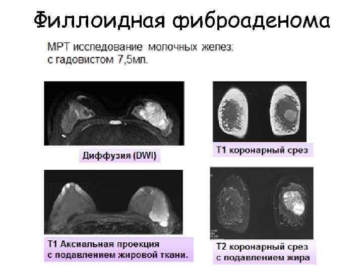 фиброзная аденома молочной железы