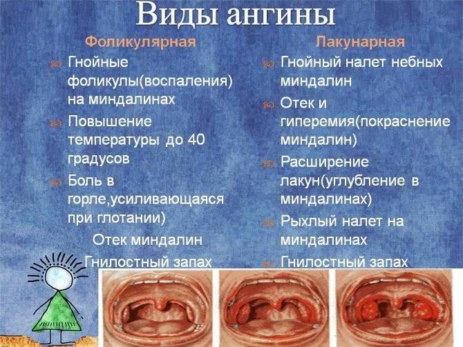 Лечение гнойной ангины в домашних условиях: как быстро вылечить заболевание, возможные осложнения