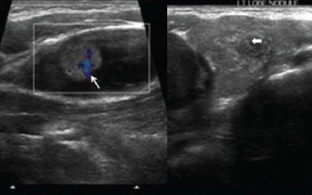 кистозное образование щитовидной железы