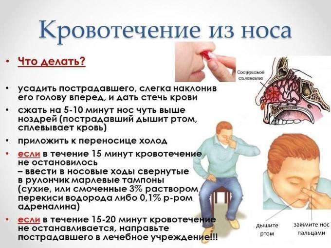 Доктор комаровский — причины появления крови в носу у детей