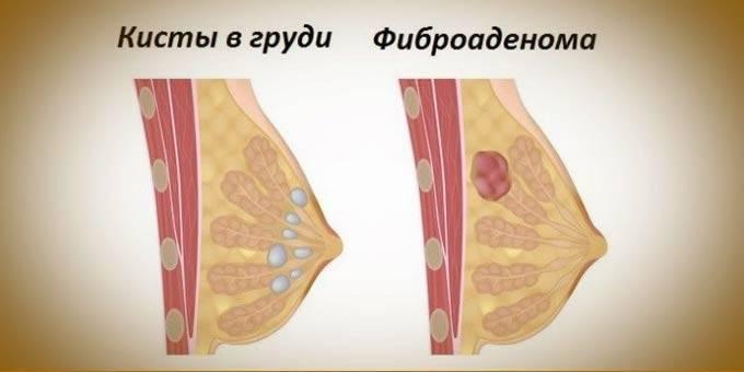 Лечение мастита грудницы у кормящих