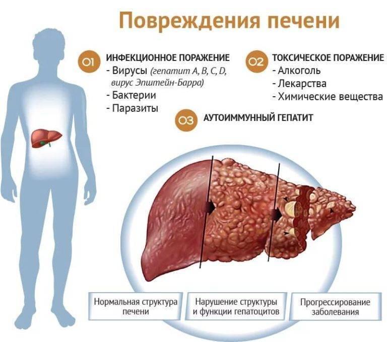 Симптомы заболеваний печени и желчевыводящих путей