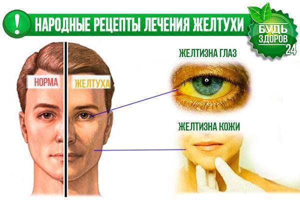 желтуха лечение