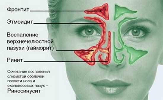 воспаление решетчатых пазух носа