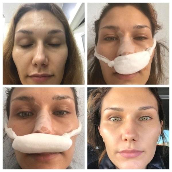как исправить искривление носовой перегородки