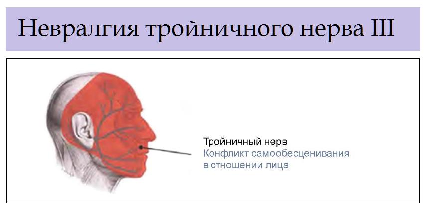 Невралгия лицевого нерва. воспаление лицевого нерва - лечение
