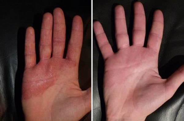 Как вылечить атопический дерматит