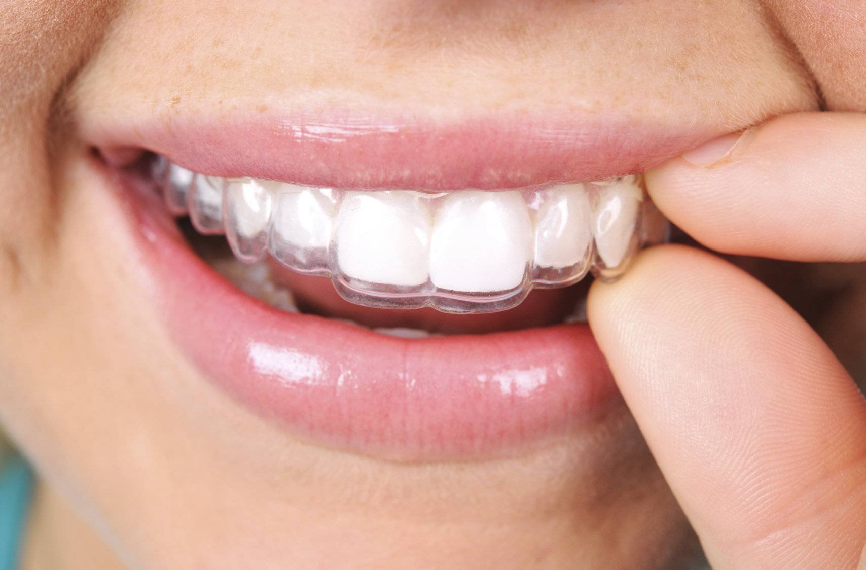 Почему детские элайнеры, а не зубные пластинки или брекеты?