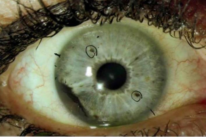 рак глаза симптомы