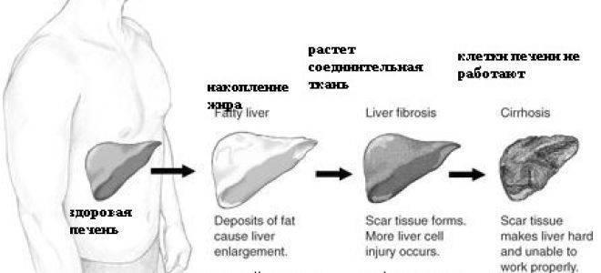 диффузные изменения печени по типу гепатоза