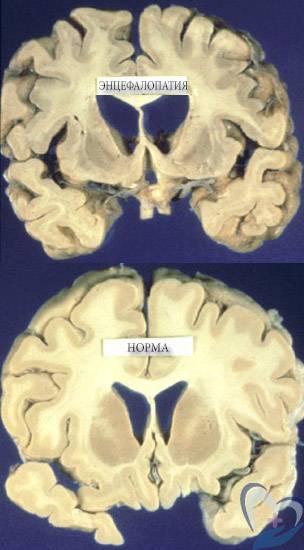 Алкогольная энцефалопатия: симптомы, лечение и прогноз