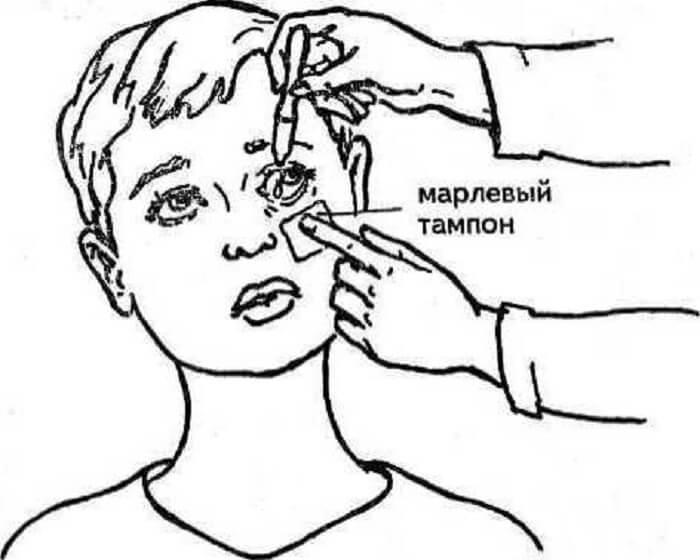 Не могу закапать капли в глаза - запись пользователя анастасия (nastya2013) в сообществе детские болезни от года до трех в категории консультация детского офтальмолога! - babyblog.ru