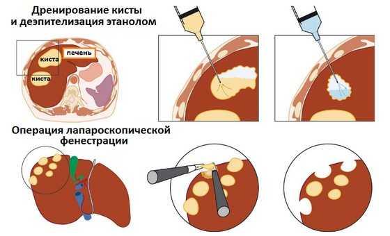 Диета при поликистозе печени: питание при кисте печени у женщин и мужчин