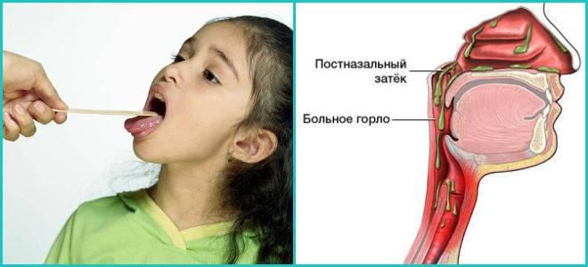 сопли в горле как лечить