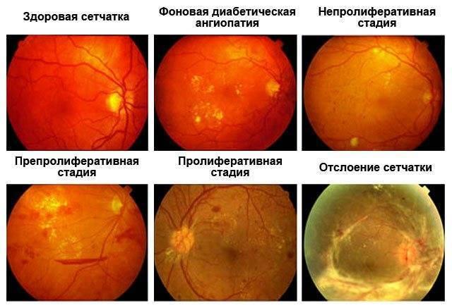 Ангиопатия сетчатки глаза у ребенка: что это такое, флебопатия сосудов обоих глаз у новорожденных и грудничков