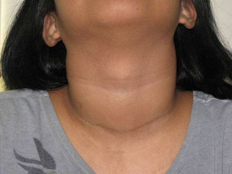 чем опасно увеличение щитовидной железы