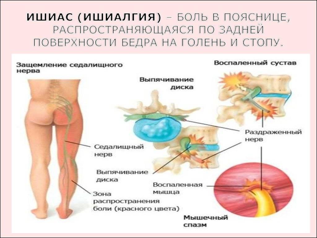 неврит седалищного нерва лечение