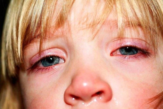 Бактериальная форма конъюнктивита у детей: признаки и лечение