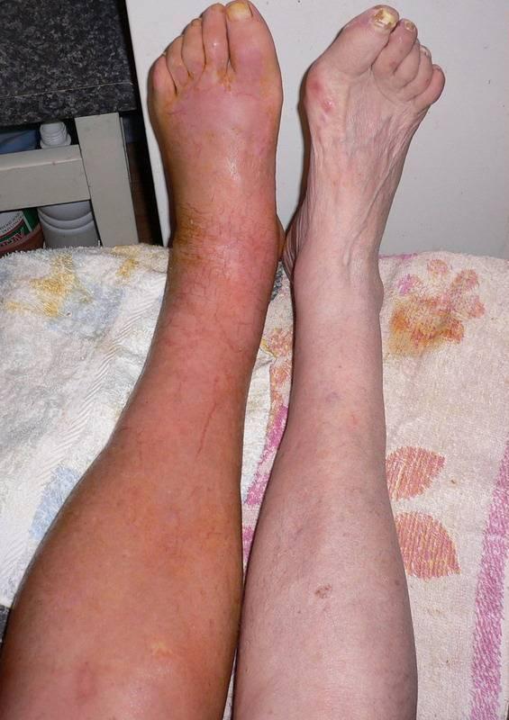 Варикозное расширение вен на ногах: симптомы и лечение