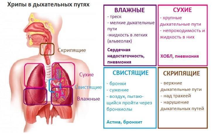 сухой кашель со свистом у ребенка