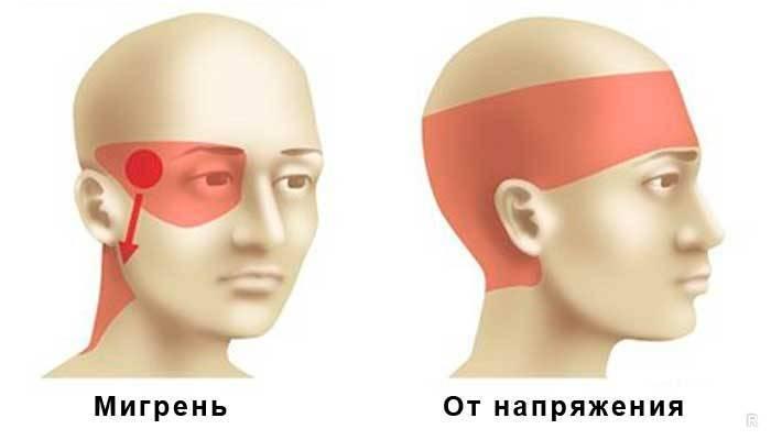 Давит на глаза изнутри причины болит лоб