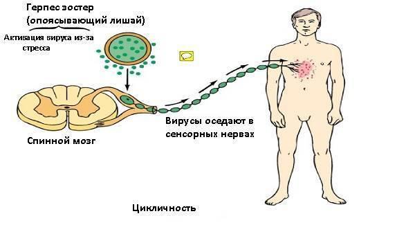 Лечение болей во время и после перенесенного опоясывающего герпеса