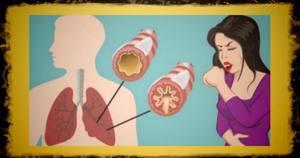 Как избавиться от мокроты в горле