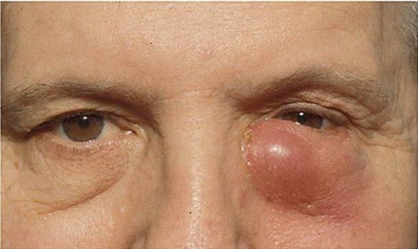 Воспаление слезных желез лечение