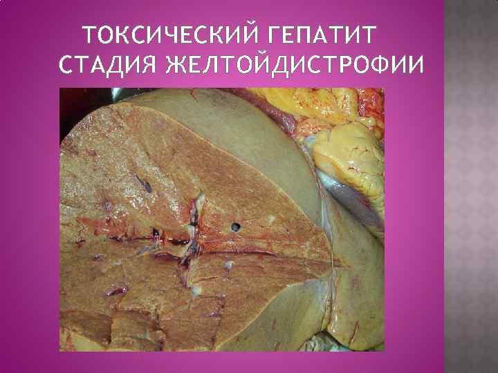 токсичный гепатит