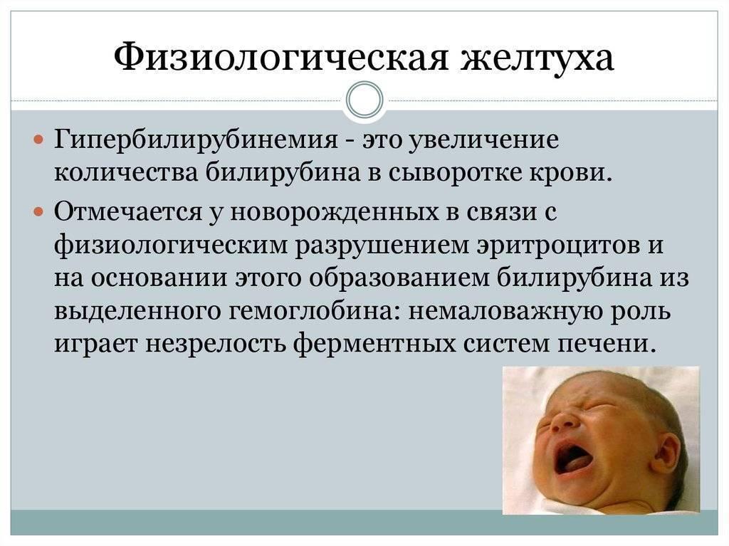 Причины возникновения желтушки у новорожденного