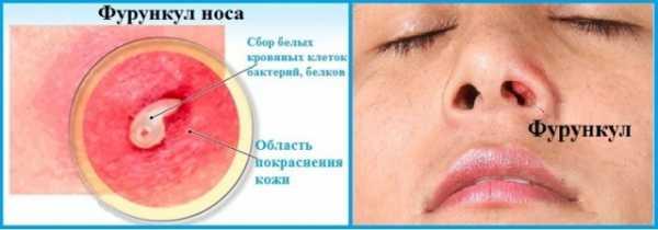 Золотистый стафилококк в носу лечение у взрослых