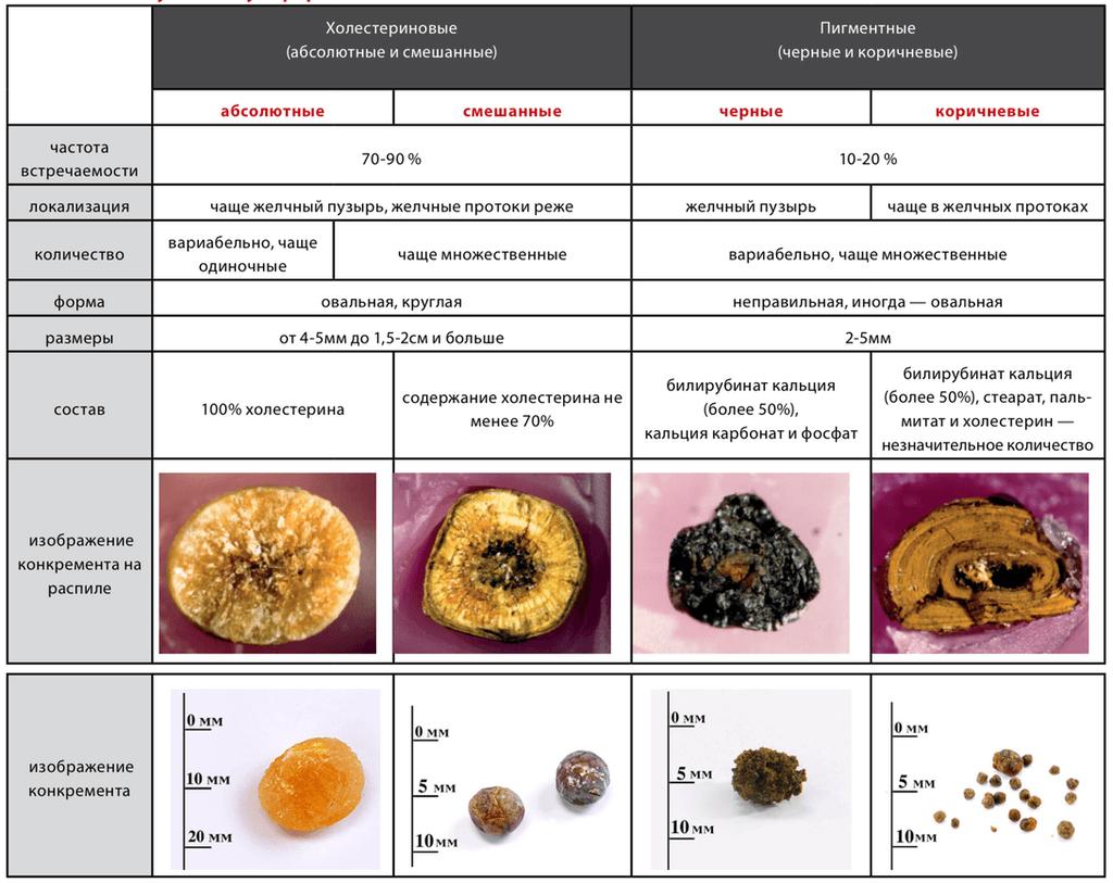 Травы для растворения камней при желчнокаменной болезни