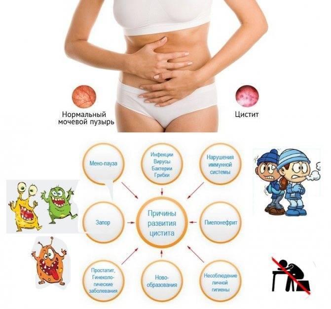 Цистит при беременности: вылечить и предупредить повторное развитие