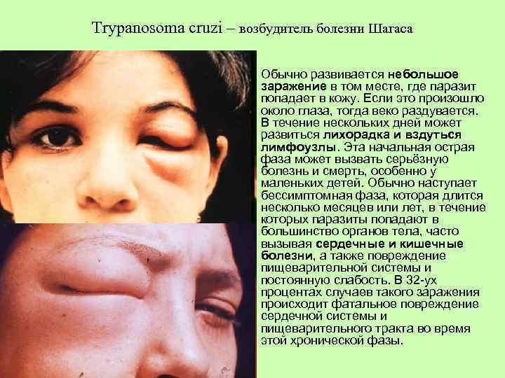 Болезнь шагаса - chagas disease