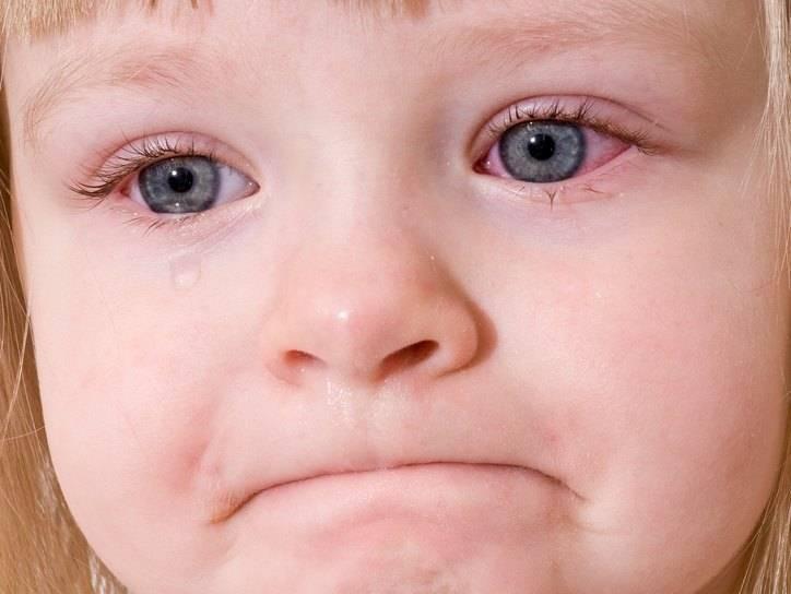 Сопли рекой, глаза слезятся. что делать? - текут сопли и слезятся глаза - запись пользователя асем (aciko-jan) в дневнике - babyblog.ru