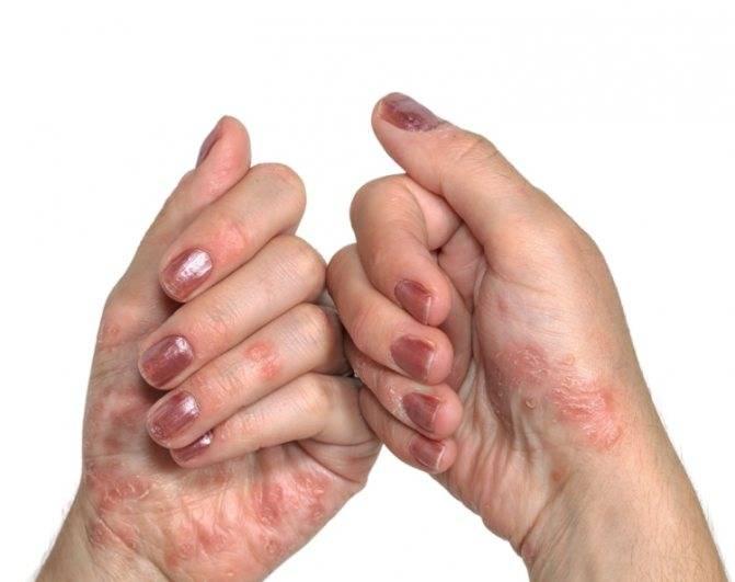 псориаз рук