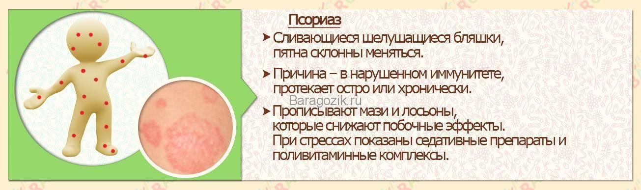 Детский псориаз: фото начальной стадии, причины и лечение заболевания у детей, в том числе грудничков