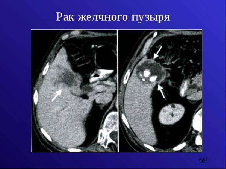 рак желчного пузыря симптомы